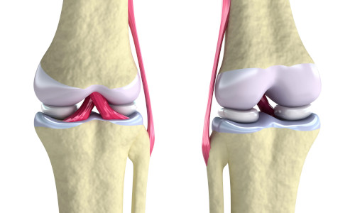 Using hybrid bioinks to 3D-print replacement cartilage for the knee.